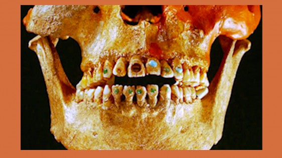 Teeth-image-160324-03-562x316